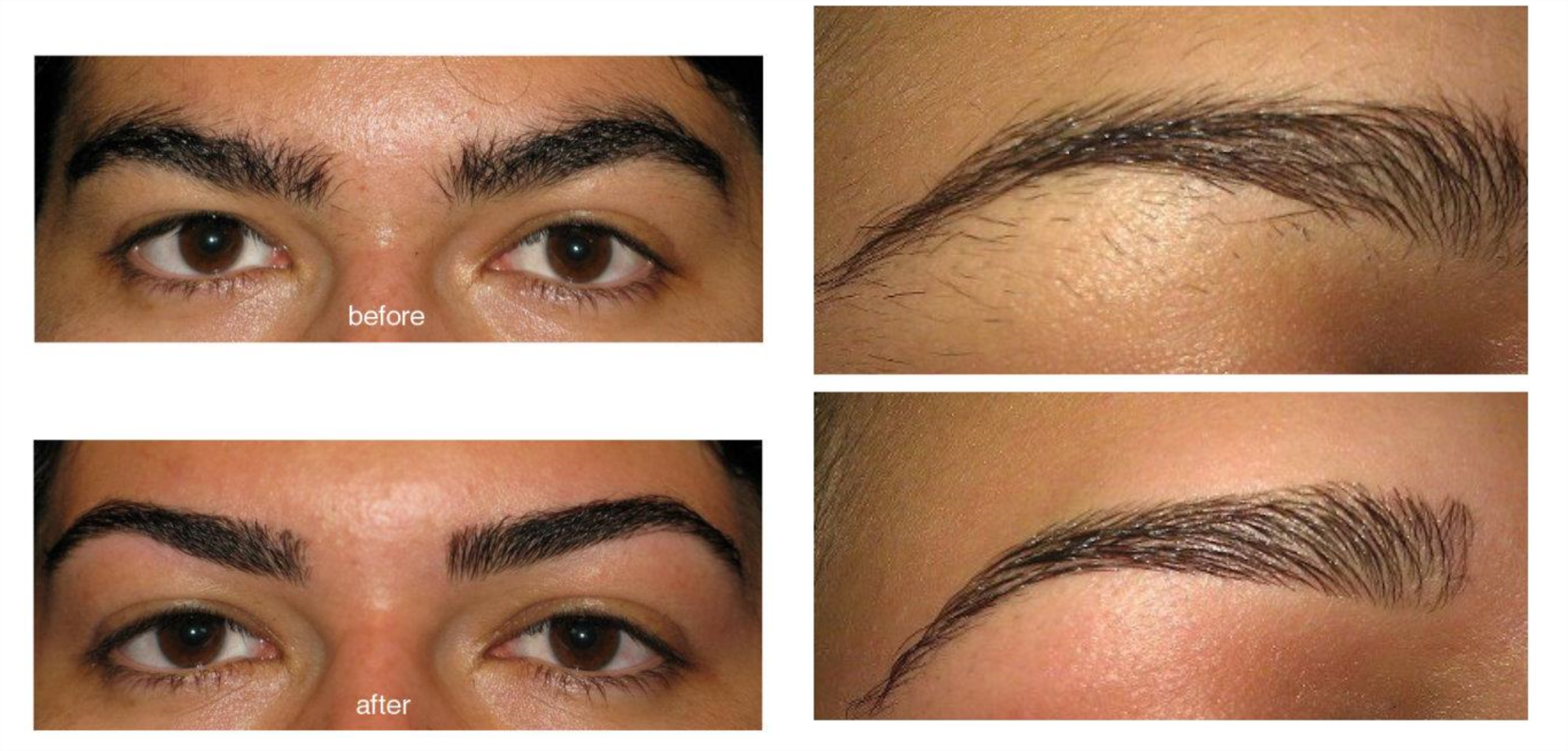 before and after threading image